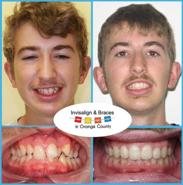 Adrian Before and After Invisalign Treatment
