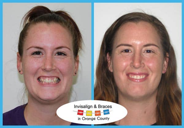 Alice Before and After Invisalign Treatment