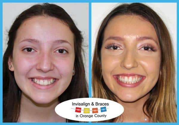 Allison Before and After Invisalign Treatment