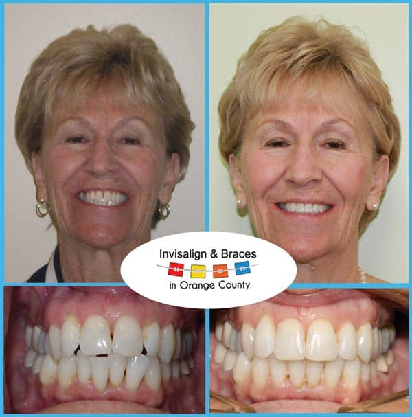 Barbara Before and After Invisalign Treatment