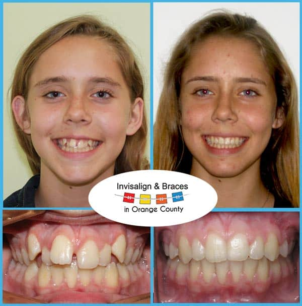 Eliza Before and After Invisalign Treatment