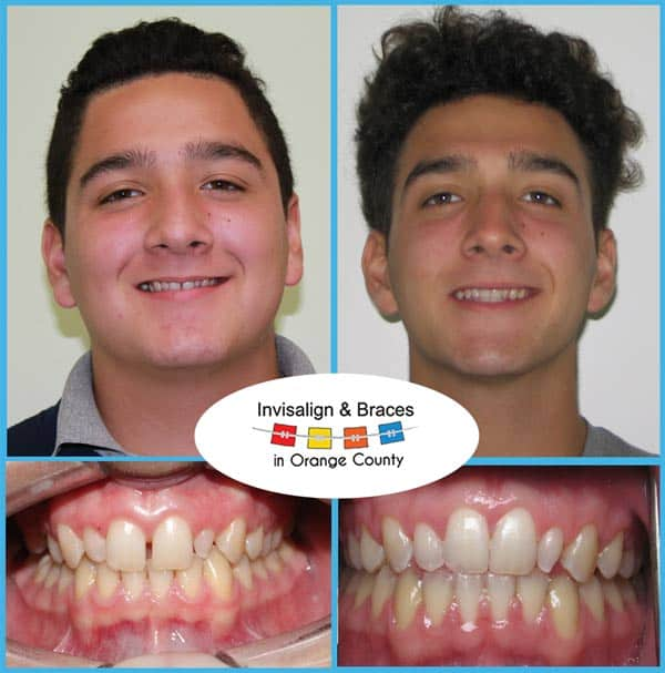Joseph Before and After Invisalign Treatment