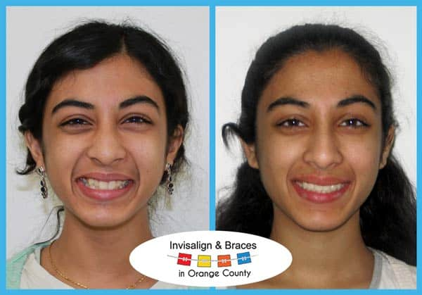 Mara Before and After Invisalign Treatment