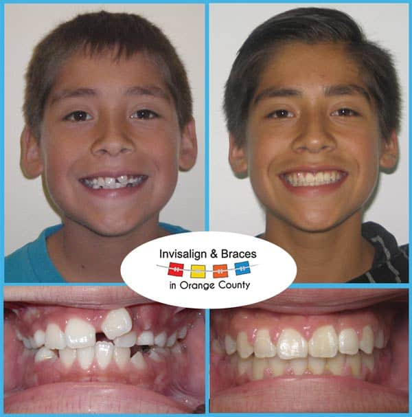 Raul Before and After Invisalign Treatment