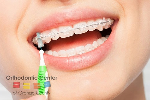 Woman Cleaning Braces