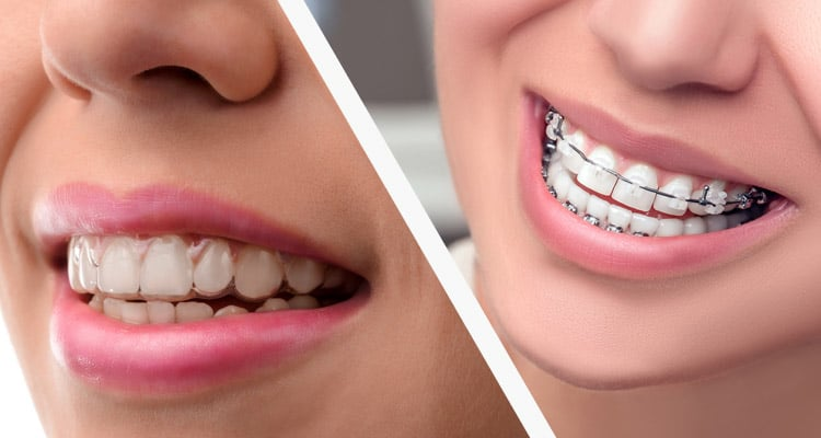 Six in 6 vs. Invisalign: What's the Difference?