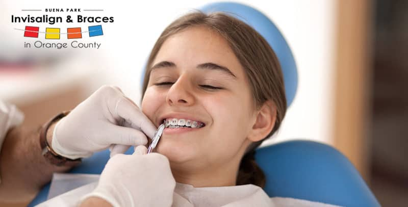 4 Ways to Relieve Painful Braces